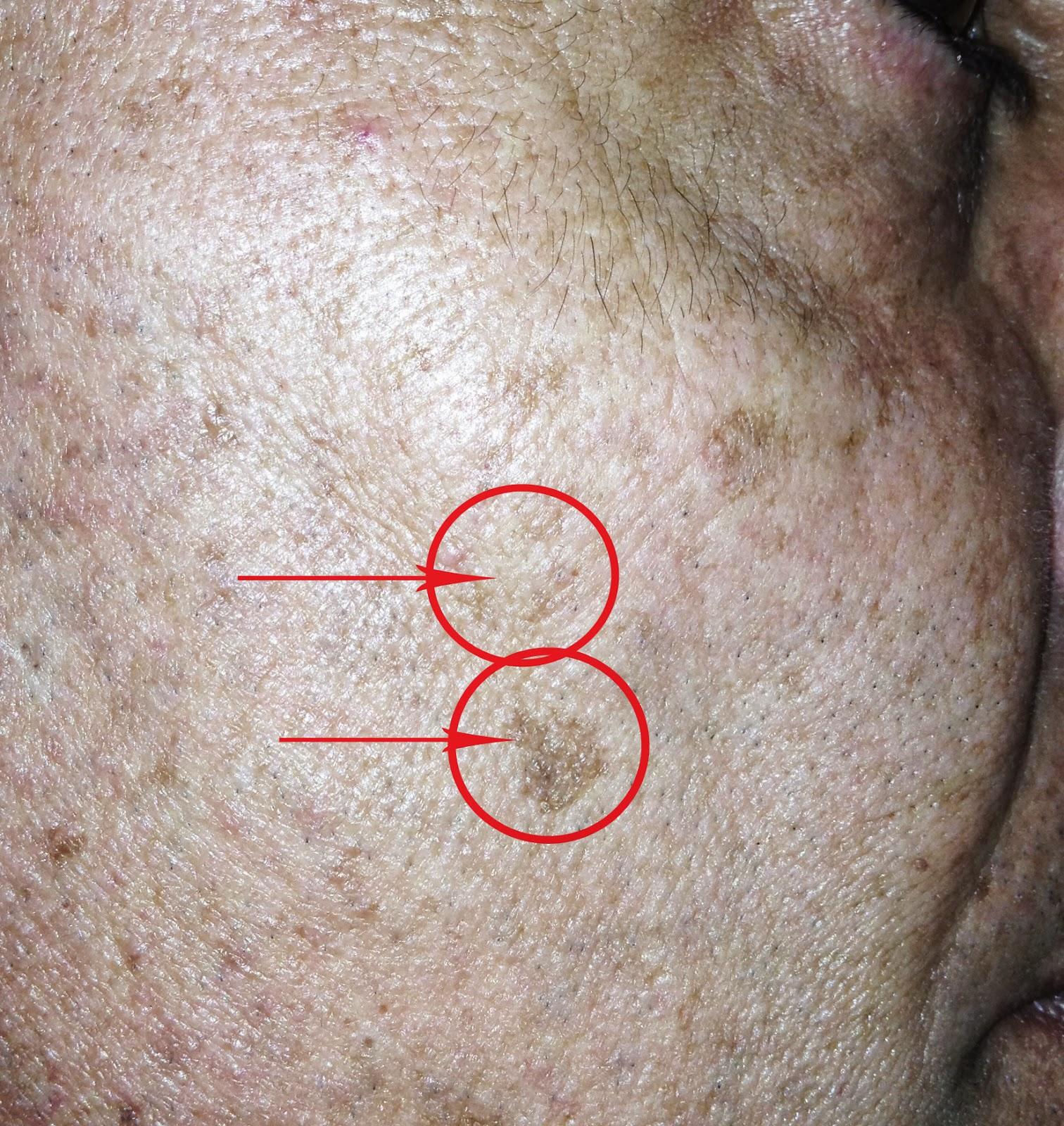 Pigmentazione della pelle di faccia dal sole